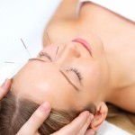 Chinese Medicine and Acupuncture for Headaches