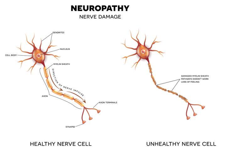 Think Neuropathy Has No Cure? Think Again